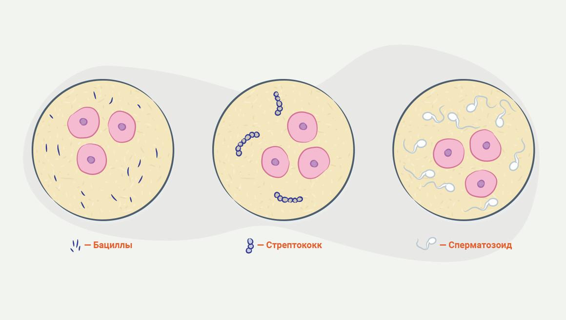 нашли стрептококк в сперме-ел3