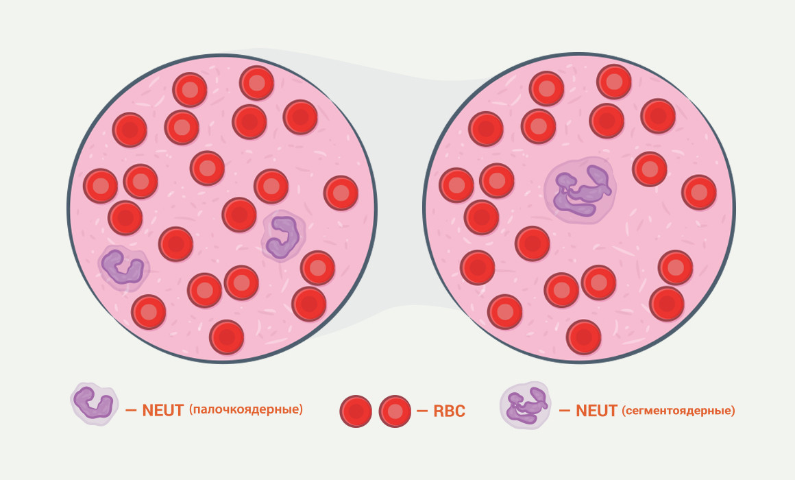 нейтрофилы